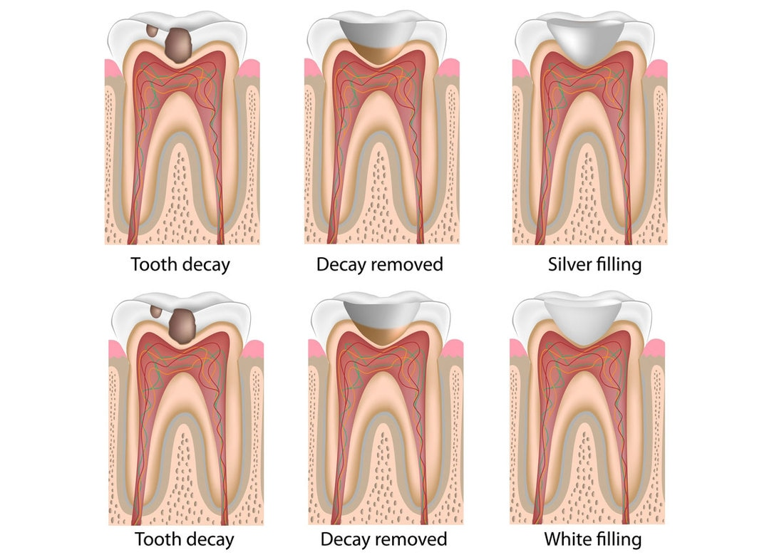 Tooth Decay Removed,  White Filling, Silver