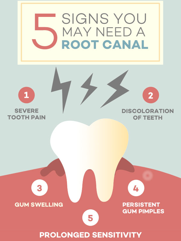 Root Canal - Severe Tooth Pain, Descoloration of Teeth, Gum Swelling, Persistent Gum Pimples, Prolonged Sensitivity