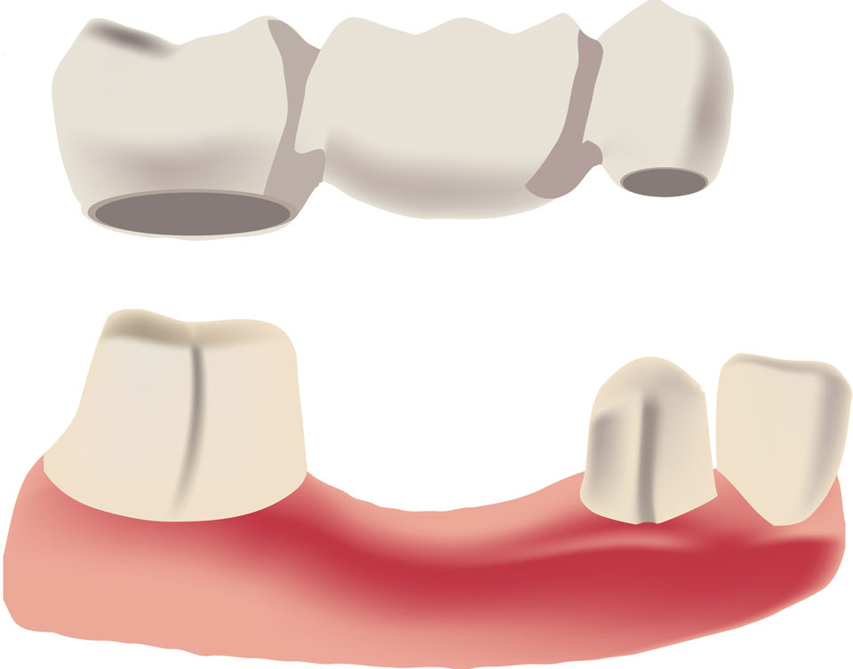Dental Crowns Bridge