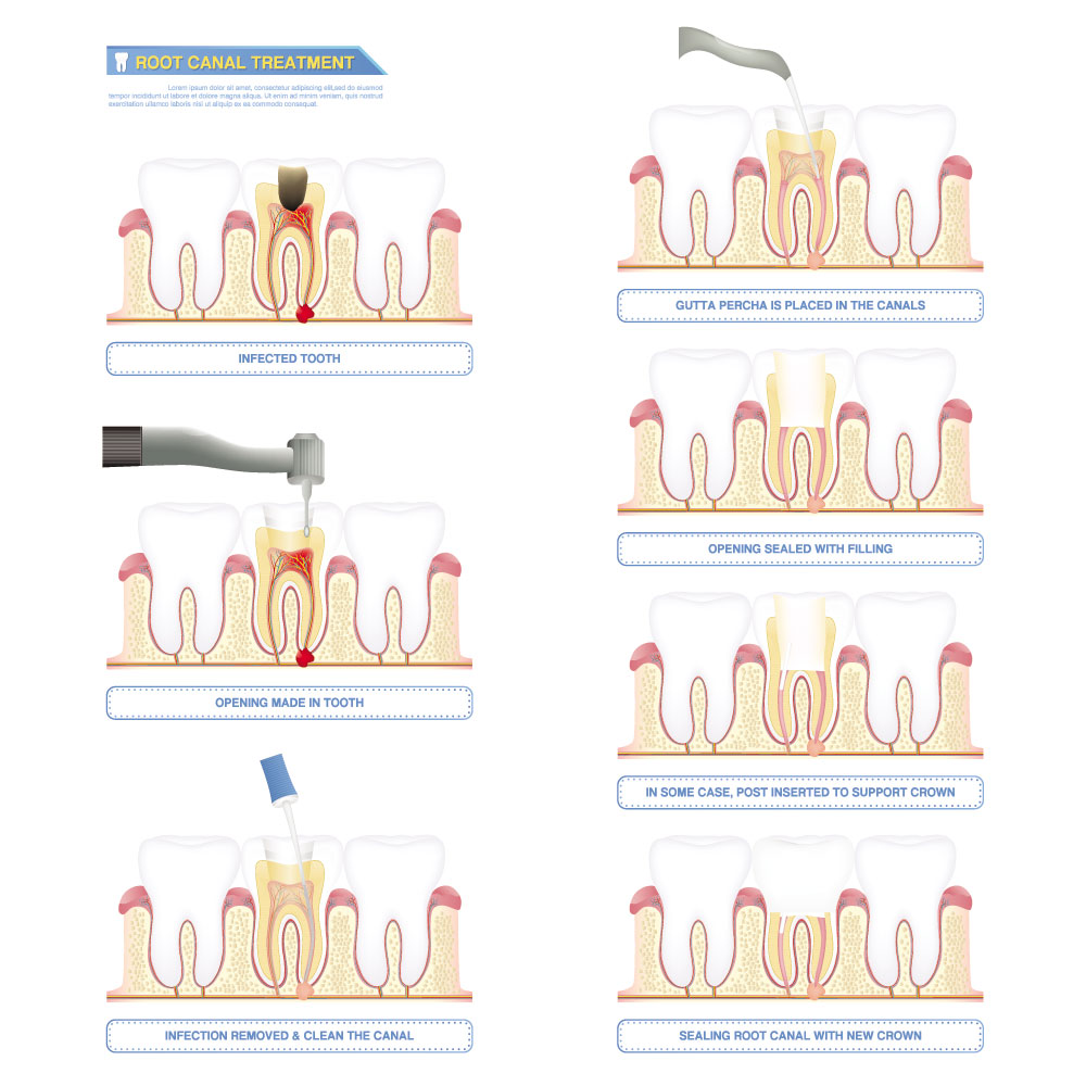 Root Canal Treatment Illustration