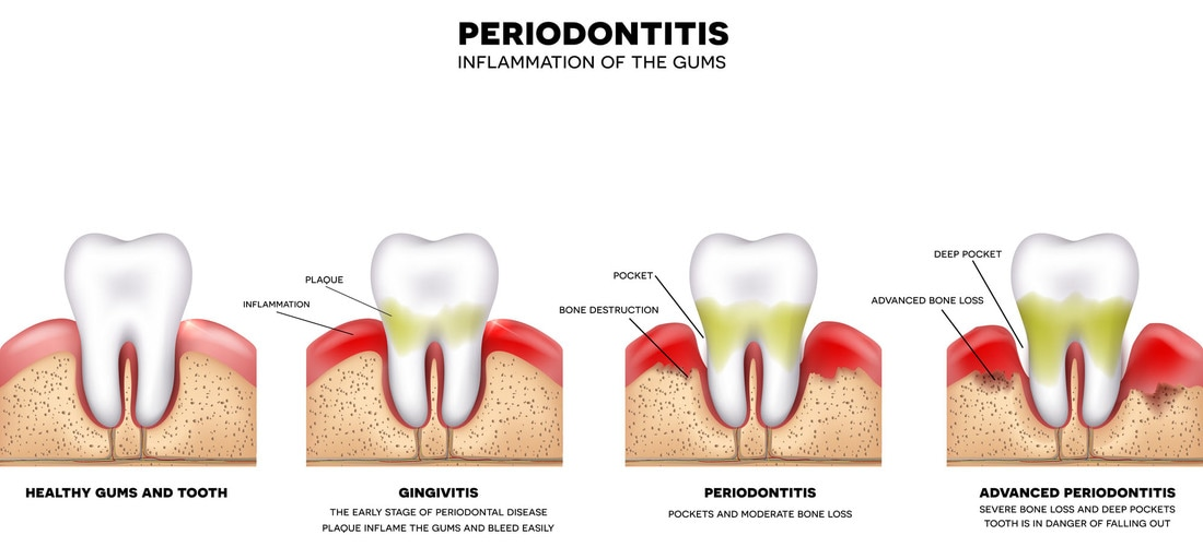 Periodontitis - Inflammation of the Gums